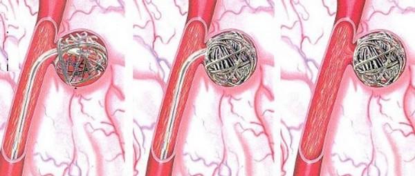 Кавернозная гемангиома печени – симптомы и лечение