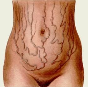 Внешний признак цирроза печени