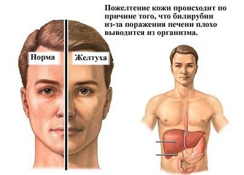 Холестатический гепатит – причины, симптомы и лечение