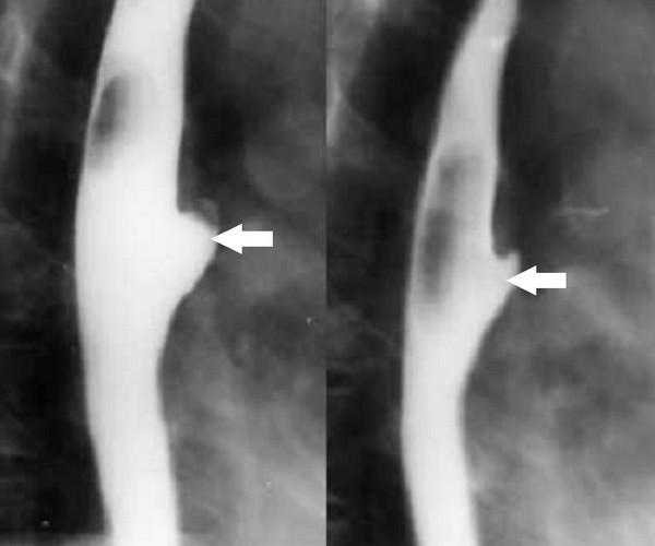 Дивертикул пищевода на рентгенограмме