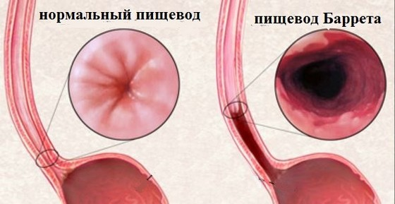 Изменение слизистой при пищеводе Барретта