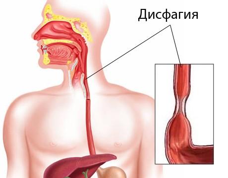 Пищевод при дисфагии