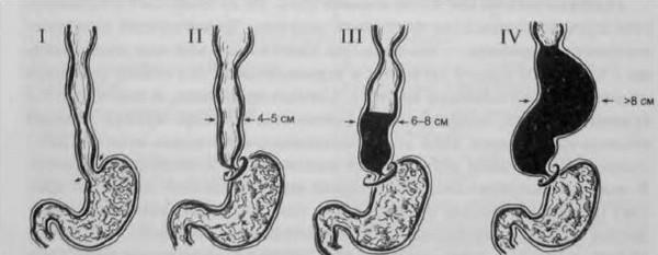 Стадии ахалазии пищевода