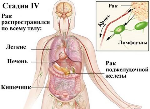 Чётвертая стадия рака поджелудочной железы