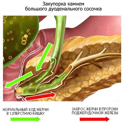 Механизм развития билиарного панкреатита