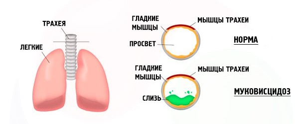 Муковисцидоз вызывает диффузные изменения поджелудочной железы