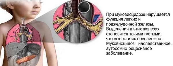 Муковисцидоз – возможная причина фиброза поджелудочной железы