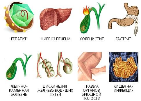 Причины реактивного панкреатита
