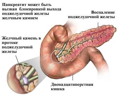 Причины возникновения приступа панкреатита