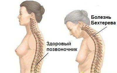 Почему возникает тяжесть и жжение под ребрами спереди и сзади? Жжение в правом боку под ребрами спереди