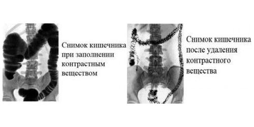 Что показывает ирригоскопия кишечника