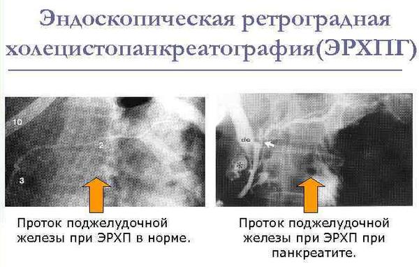 Эндоскопическая ретроградная холецистопанкреатография