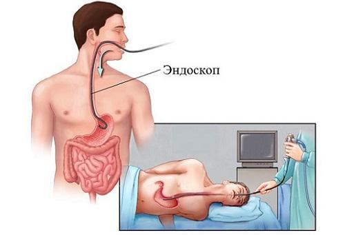 Эндоскопическое исследование