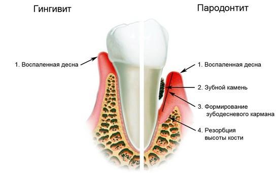 Гингивит и пародонтит – возможные причины металлического привкуса во рту