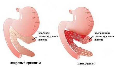 Панкреатит – возможная причина боли в правом подреберье