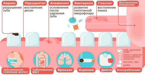 Причины появления запаха кала изо рта