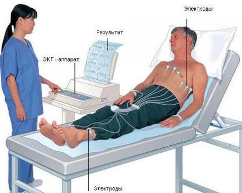 Процедура ЭКГ
