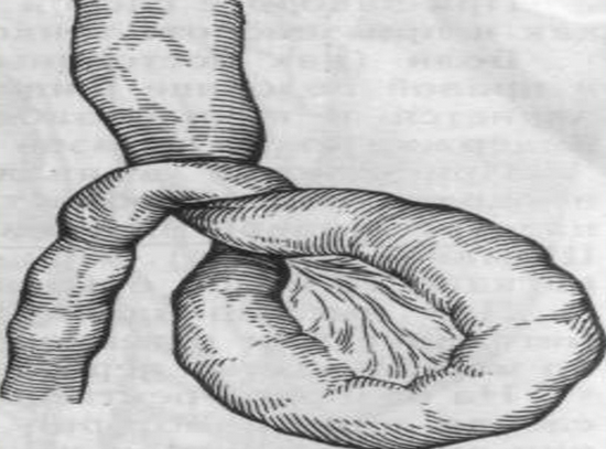 Схема заворота тонкой кишки