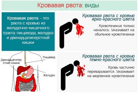 Виды рвоты с кровью