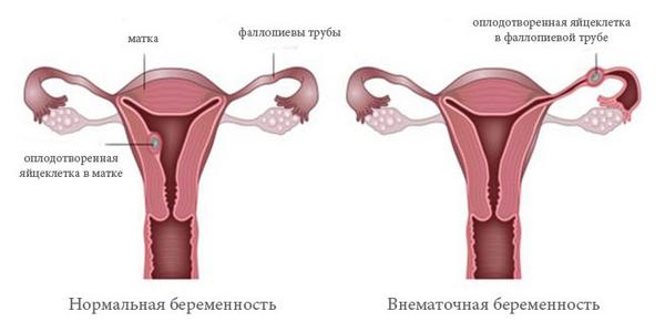 Болит бок слева у беременной