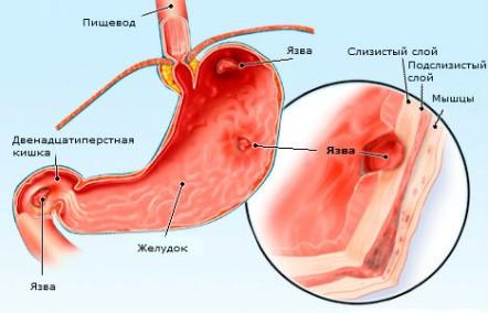 Язва желудка и ДПК – возможные причины боли в желудке с тошнотой