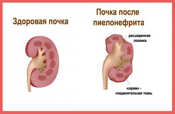 Здоровая почка и пораженная пиелонефритом