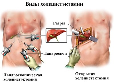 Лечение рака желчного пузыря