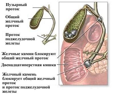 Причины печёночной колики