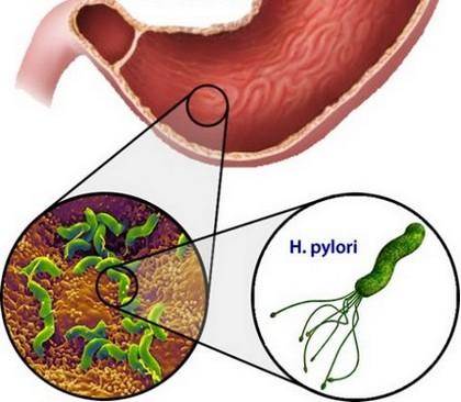 Бактерия Хеликобактер пилори – одна из причин гастрита