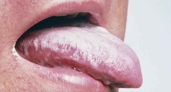 Белый налет на языке при неврозе желудка