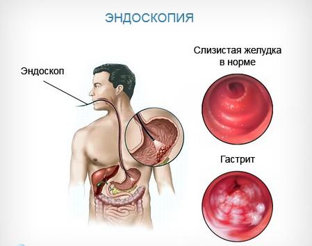 Диагностика субатрофического гастрита