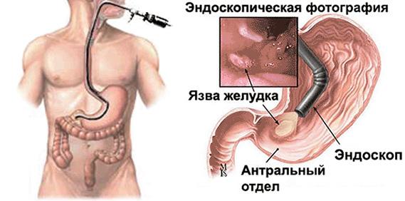 Дисплазия желудка 1 степени - лечение, диагностика, причины