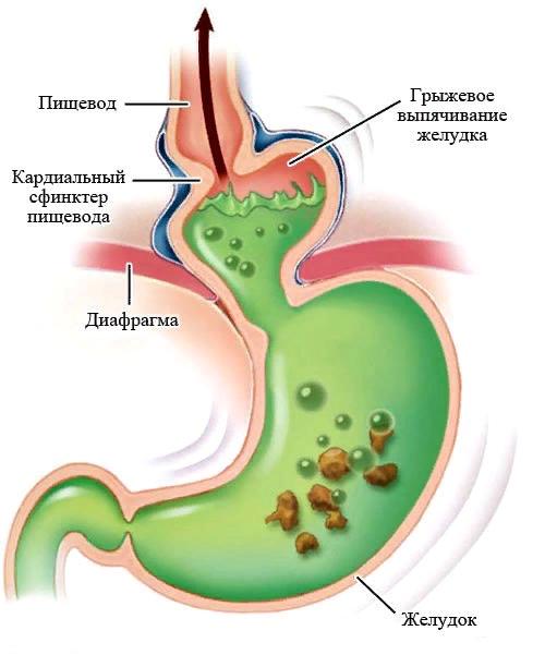 Грыжа желудка