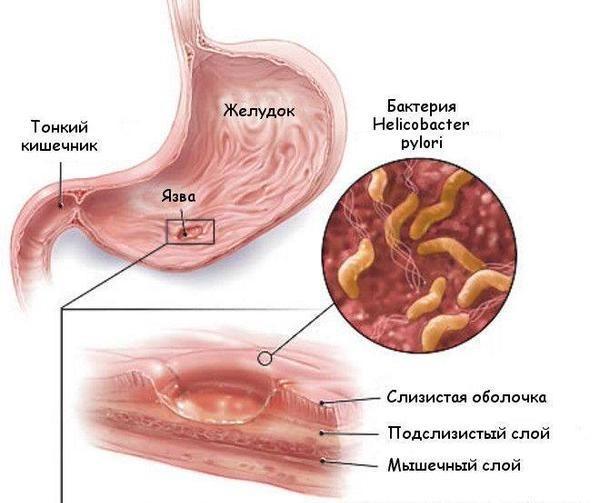 Инфицирование бактерией Хеликобактер Пилори