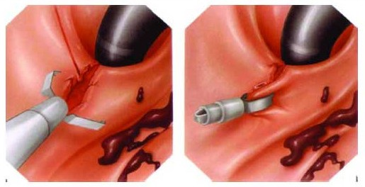 Лечение кровотечения язвы с помощью клипсы