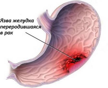 Малигнизация язвы желудка: причины и механизм развития, симптомы, лечение