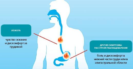 Основные симптомы повышенной кислотности желудка