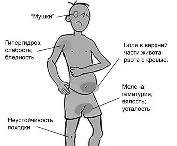 Основные симптомы желудочного кровотечения