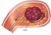 Полип антрального отдела желудка мкб 10