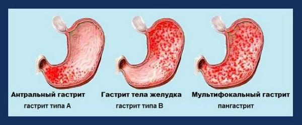 Разновидности хронического поверхностного гастрита