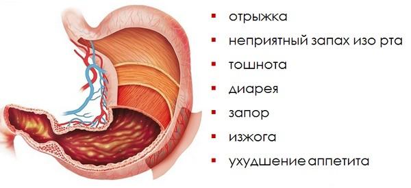 Симптомы антрум гастрита