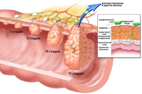 Стадии развития лимфомы желудка