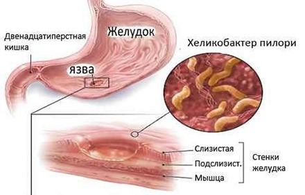 Влияние бактерий Хеликобактер пилори